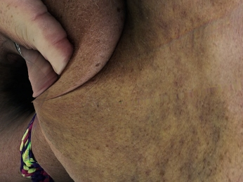 bioart-bruise-bennett-C